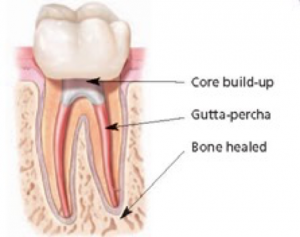 Root Canal 2